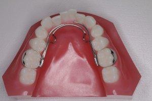 顎顔面矯正(下顎装置)
