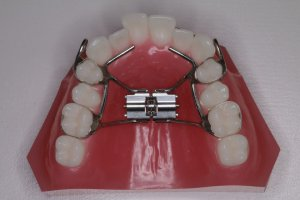 顎顔面矯正装置