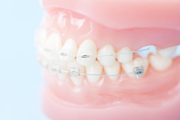 セラミックブラケット|平野歯科クリニック