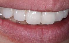 歯をキレイに|平野歯科クリニック
