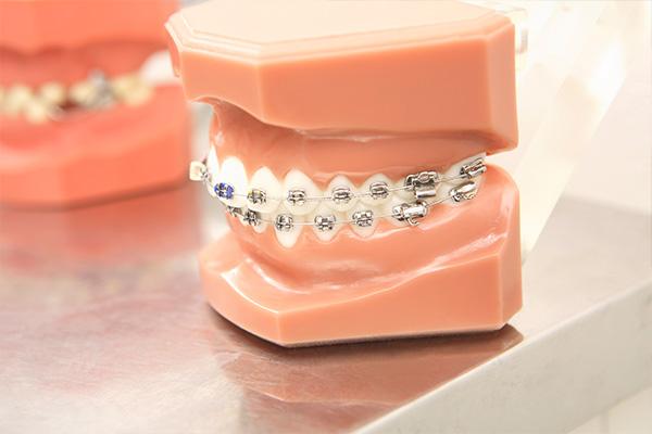 歯並びの改善は病気予防にも効果的です