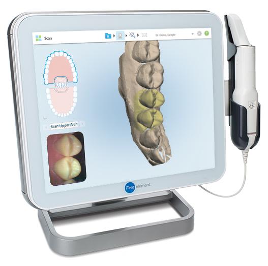 iTero(アイテロ)イメージ 平野歯科クリニック