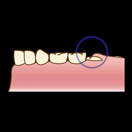 歳 臼歯 六